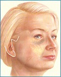 The Facelift Surgery